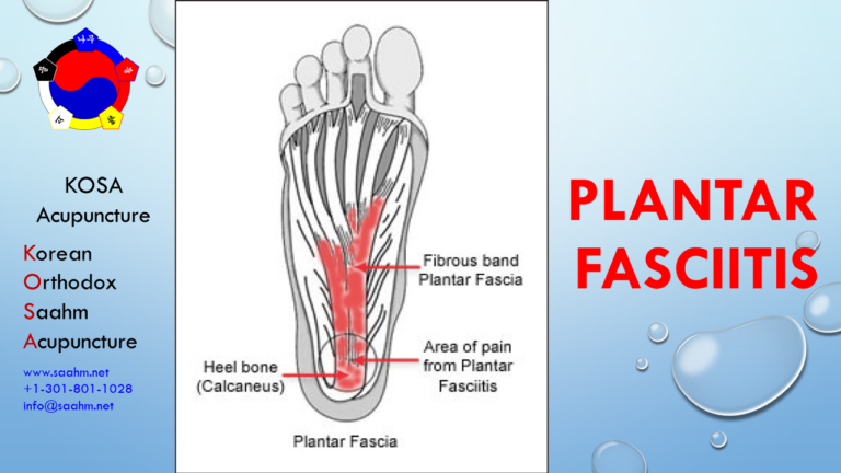 KOSA Acupuncture For Plantar Fasciitis