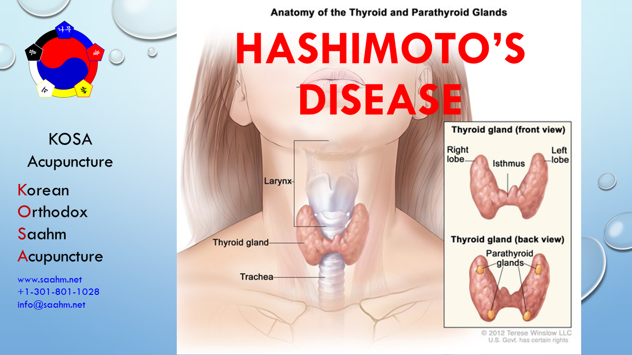KOSA Acupuncture for Hashimotos Disease - KOSA Acupuncture For Hashimoto's Disease