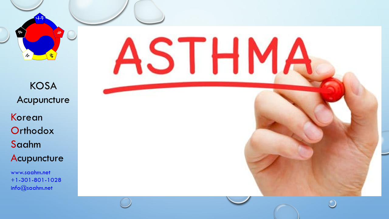 KOSA Acupuncture for Asthma - Terms of Service